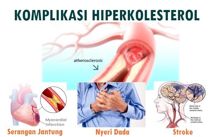 Penyakit Yang Diakibatkan Oleh Kolesterol Tinggi, Apa Saja?