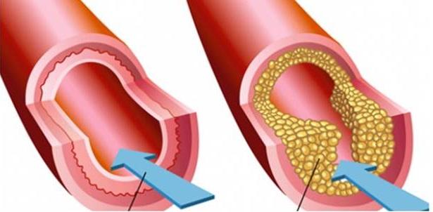 Kenali Gejala dan Ciri-Ciri Penderita Kolesterol
